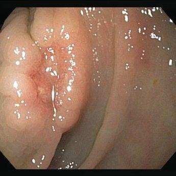 Zustand nach inkompletter Polypektomie im Colon descendens (Frühkarzinom