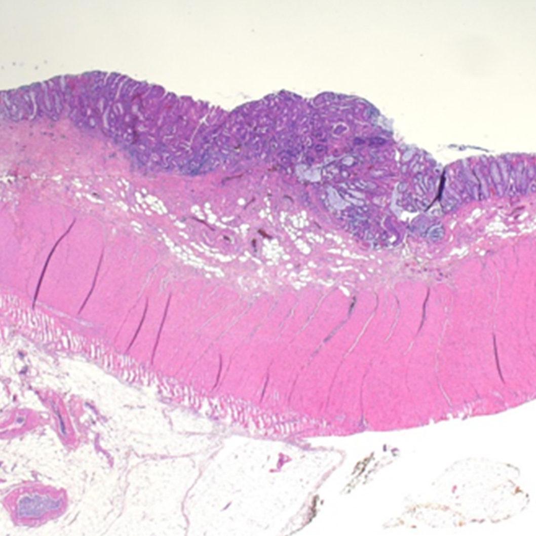 Histologie zeigt komplett entferntes Adenomrezidiv, HGIEN