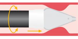 Schematische Darstellung der Bougierung mit der BougieCap 2
