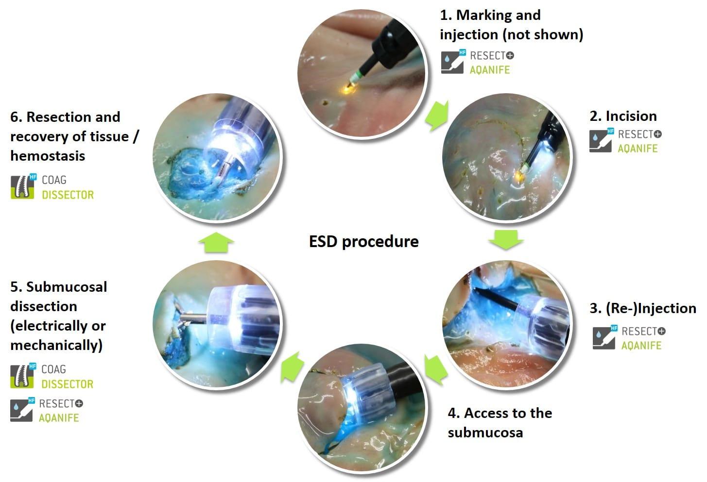 Aqanife Ovesco Endoscopy Ag