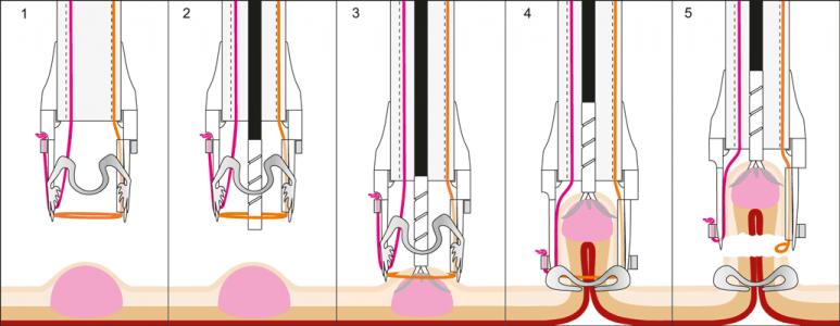 1. Anvisieren der markierten Läsion mit FTRD System; 2. Anchor durch Arbeitskanal ausführen; 3. Anker auf Läsion positionieren und Nadeln ausfahren 4. Kappenrand auf Läsion führen und Lässion langsam in die Kappe manövrieren sowie Clip Aplikation; 5. Integrierte Schlinge schließen und Gewebe resizieren