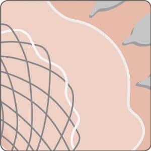 Schematische Darstellung der proximalen Stentfixierung mit dem stentfix OTSC 2