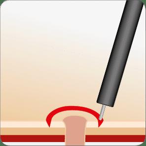 Optimierter Fistelverschluss mit dem OTSC System Schritt 1