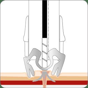 Fistelverschluss mit dem OTSC Schritt 3