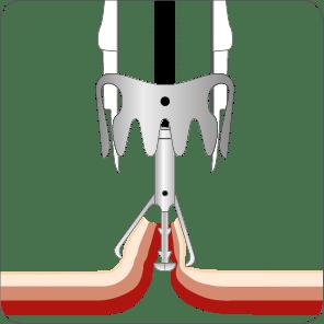 Perforationsverschluss mit dem OTSC TwinGrasper Schritt 2
